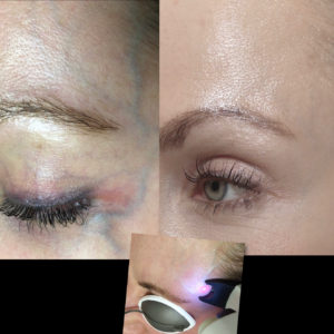 Blog - NORDLYS Nd:YAG LASER VEIN TREATMENT Photo