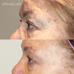 Blog - FACIAL AGE SPOTS Photo