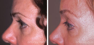 Before & After Browlift Set4 thumb4