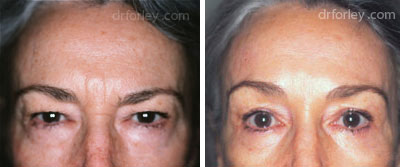 Before & After Browlift Set5 thumb5