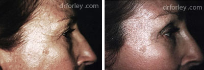 Before & After Browlift Set6 thumb6