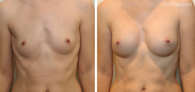 Before & After Breast Set7 thumb1