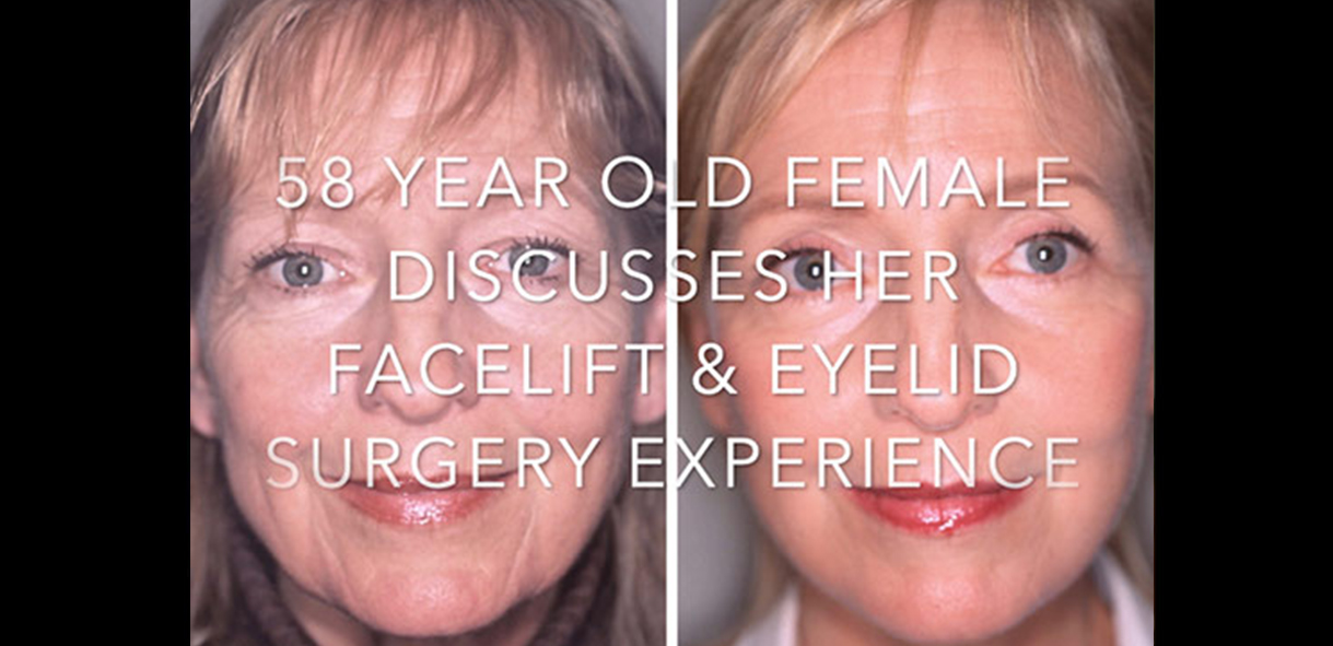Watch Video: A Patient Discusses Her Facelift and Eyelid Surgery | Dr. Forley