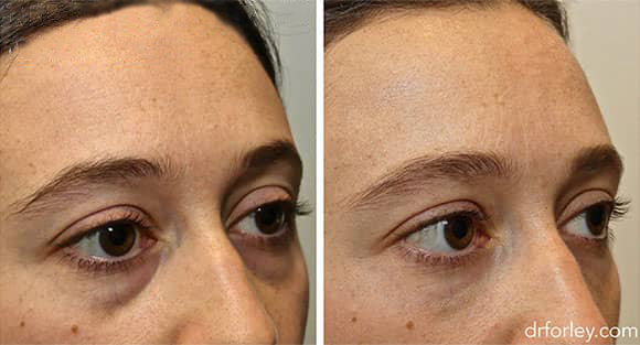 Female face, before and after Injectable Fillers treatment, oblique view, patient 1