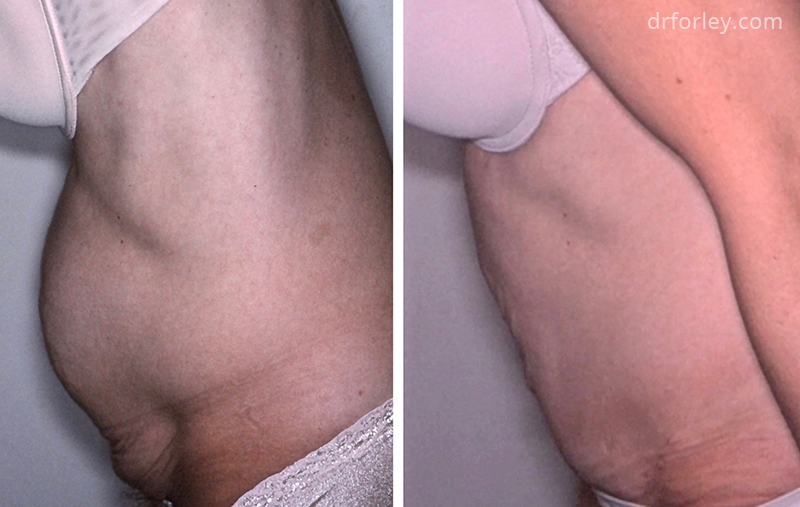 Before & After Tummy Tuck Set3 thumb3